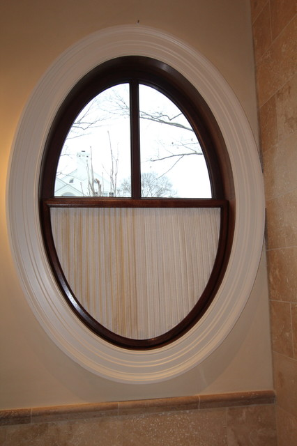 Oval window for Window treatment for oval window