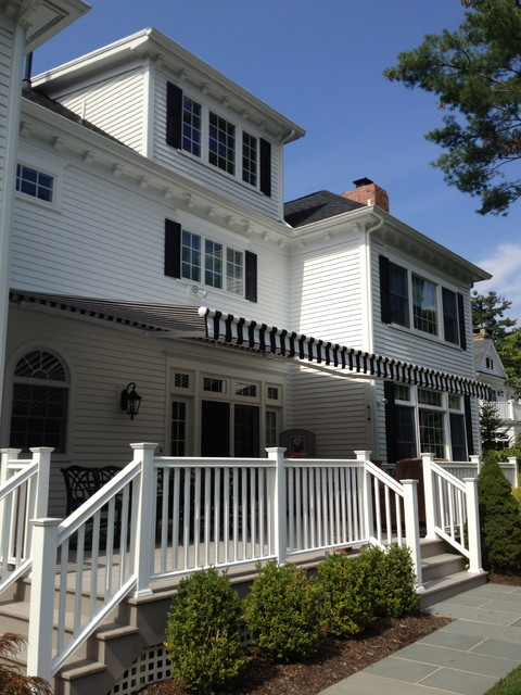 Retractable Awning Black & White Stripe - Traditional